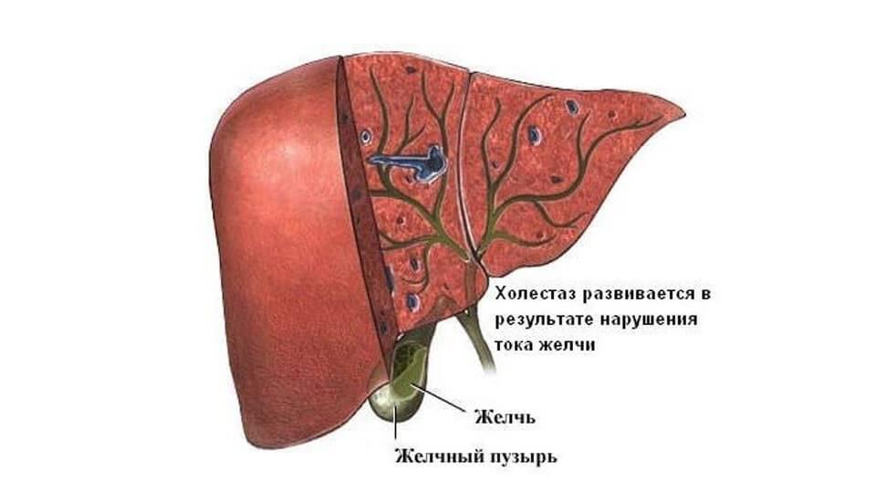 Классификация синдрома холестаза: симптомы и методы лечения