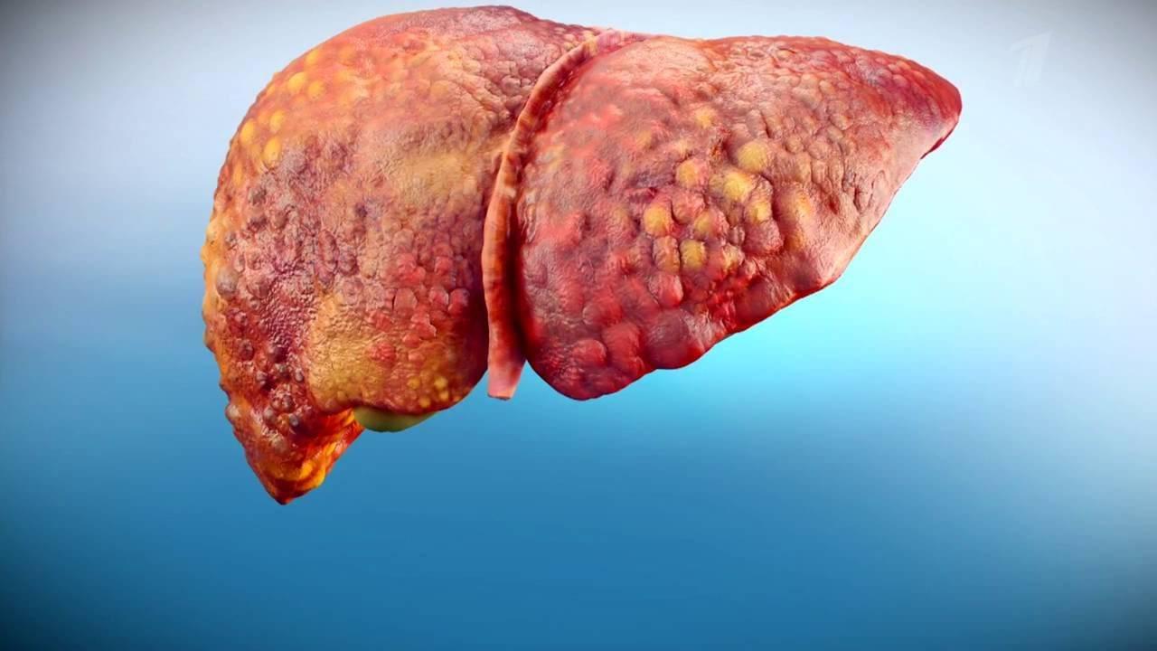Гепатит А. Как передается от человека к человеку, чем опасен, симптомы и лечение, инкубационный период