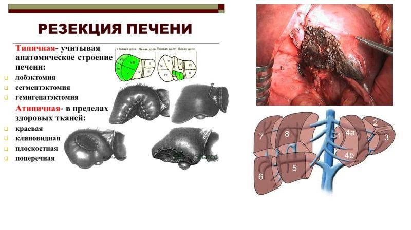 Резекция печени: что это такое, как проводится и когда показана операция?