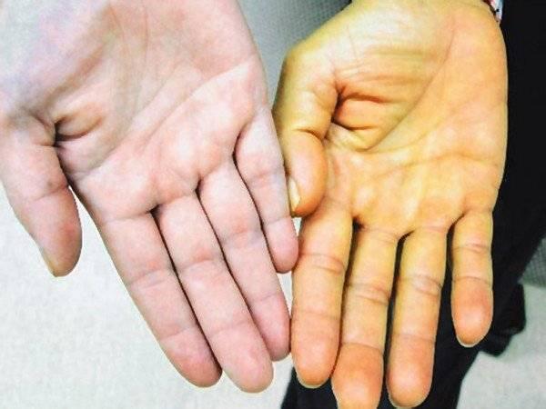 Как провести экспресс-тест на гепатит С с достоверностью?
