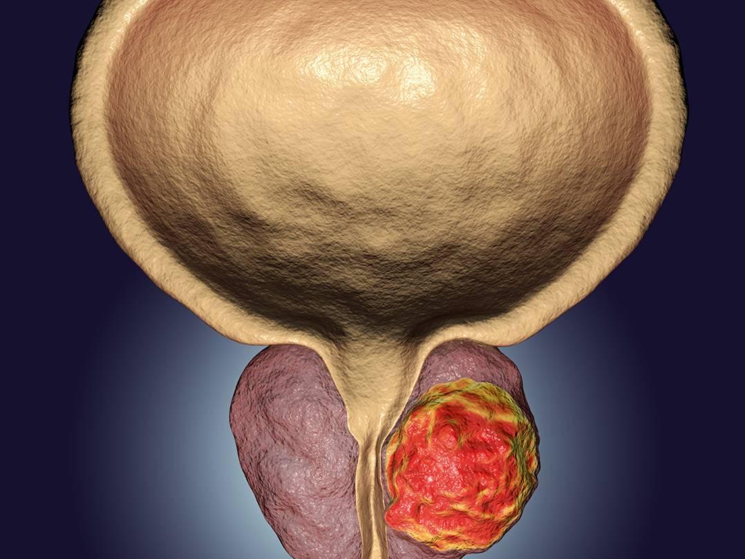 Что такое аденома простатит крем здорово от простатита