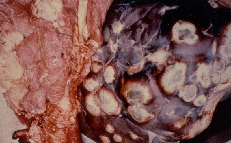 Как распознать и диагностировать цирроз печени?