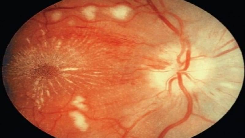 Гипертонический ангиосклероз сетчатки глаза мкб 10 ...