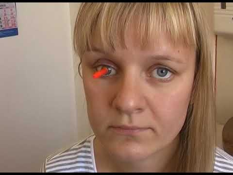 люди с протезом глаза фото как-то