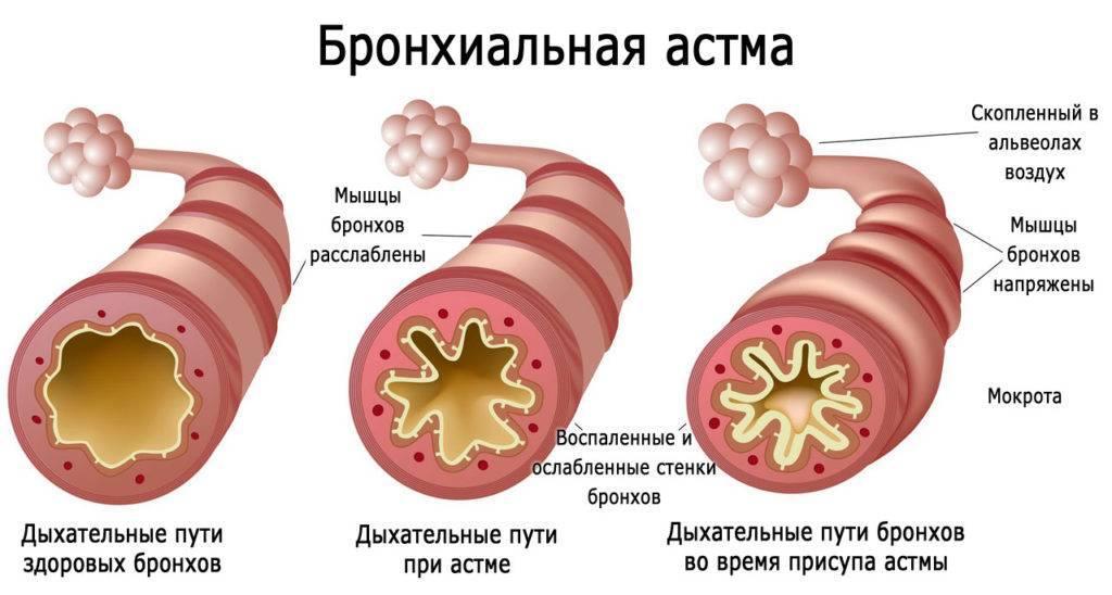 Первые признаки астмы у взрослого человека