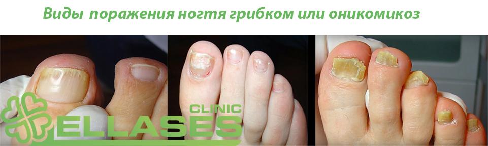 Онихомикоз — каждый четвертый болел, болеет или еще заболеет им!