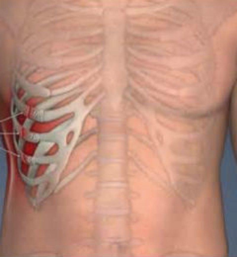 Трещина ребра симптомы и лечение