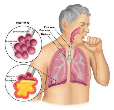 Характер и причины болезненных ощущений в груди при пневмонии