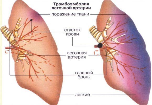 Венозный тромбоз - как его лечить? острая форма заболевания