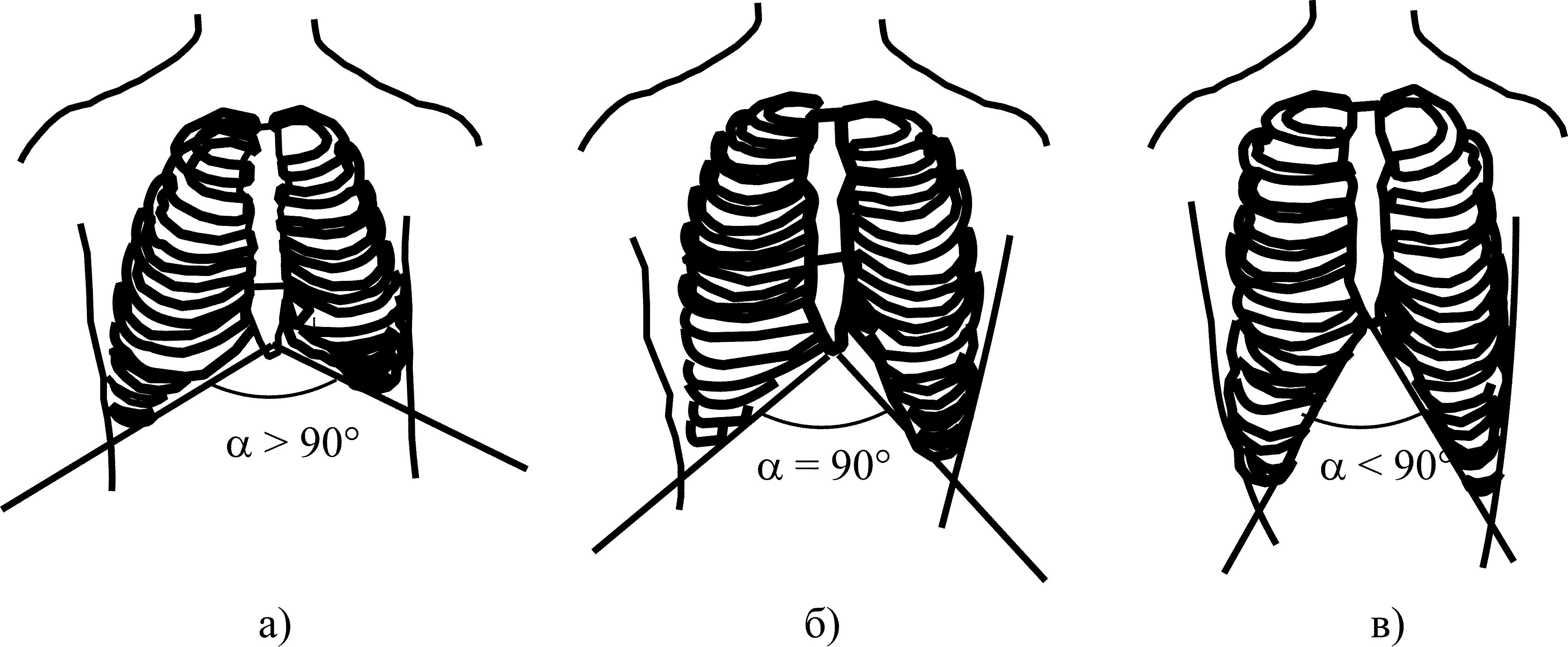 Деформации грудной клетки - виды, описание, симптомы и причины