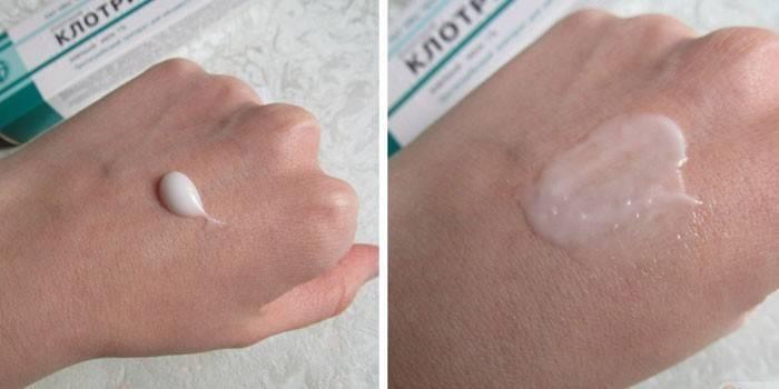 Противогрибковое средство Клотримазол крем - отзывы