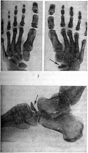 Остеохондропатия ладьевидной кости стопы