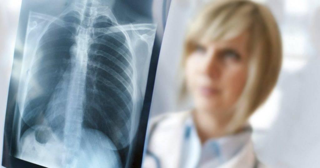 Туберкулез на фоне диабета