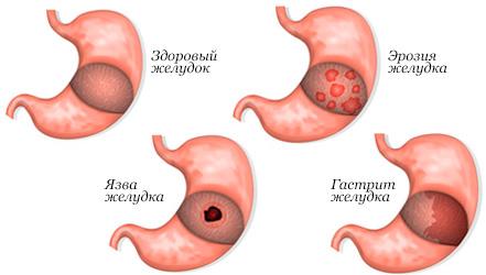 Диета при эрозии желудка и двенадцатиперстной кишки