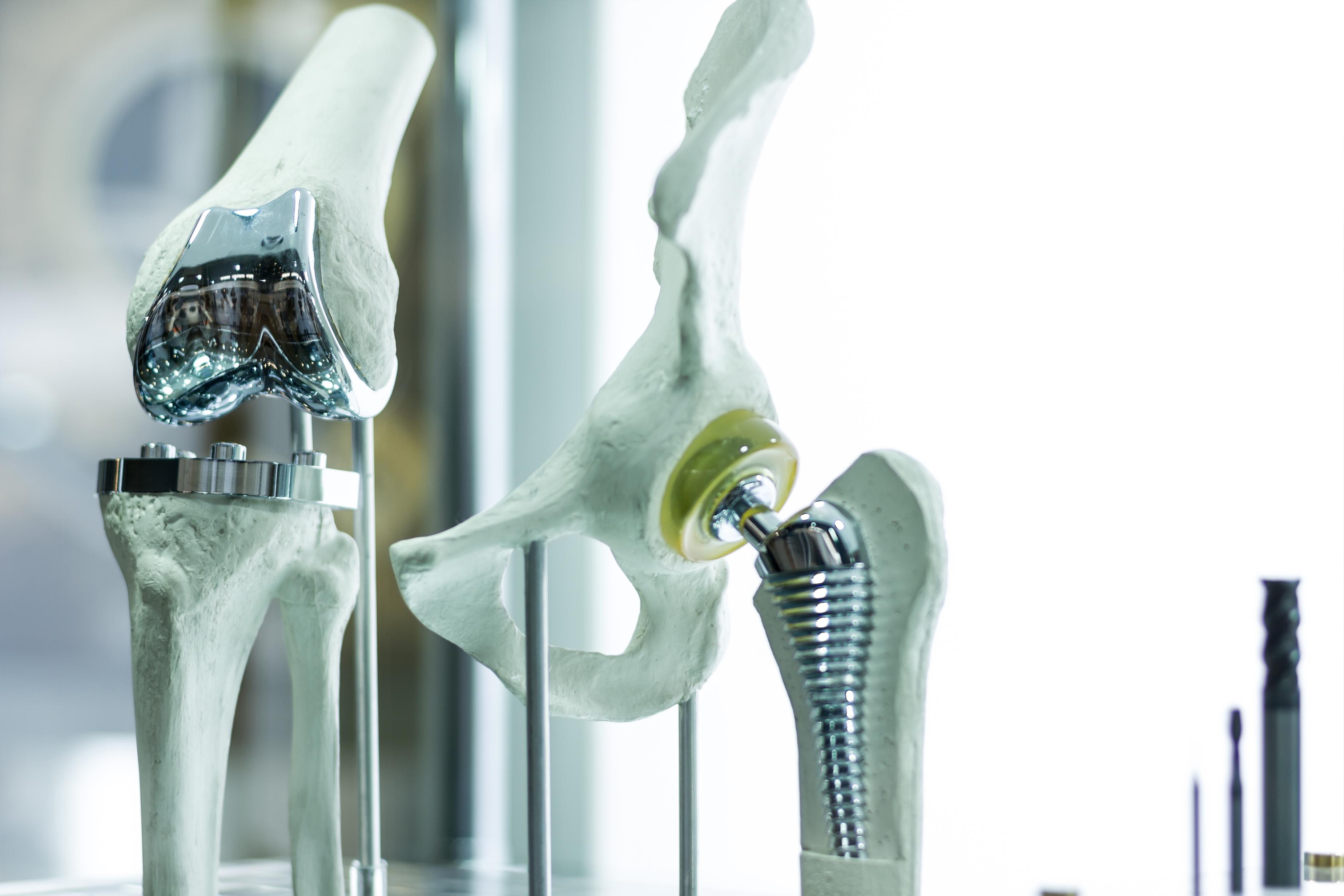 Замена коленного сустава: что это, видео-фото операций, технологии, сроки восстановления