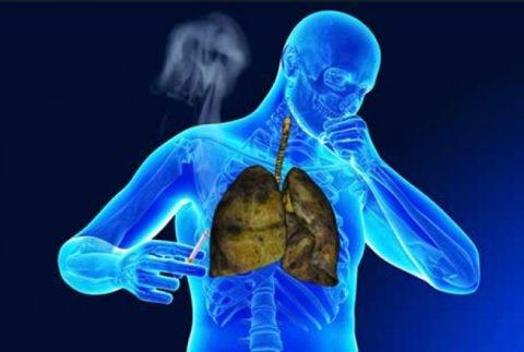 Можно ли курить при пневмонии: последствия