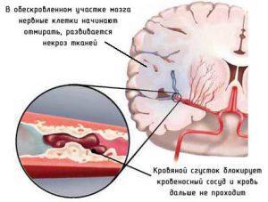 Головной мозг способен сам защититься от инсульта