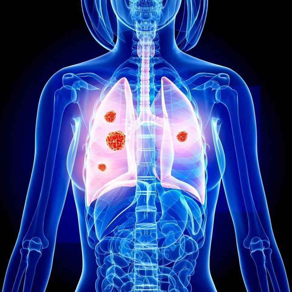 Туберкулез у взрослых: симптомы, первые признаки                                                                               22326                                                                   0