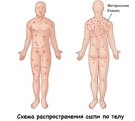 Розовый лишай: причины появления, основные симптомы, варианты лечения и советы по выбору препарата (100 фото)