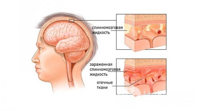 Поражение мозга при менингите