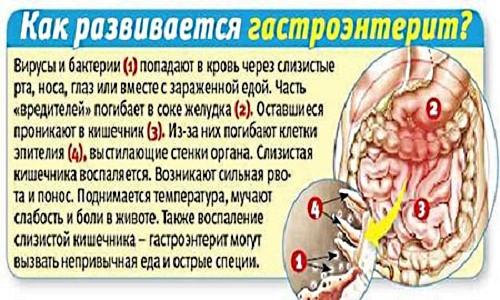Причины, симптомы, лечение острого гастроэнтерита
