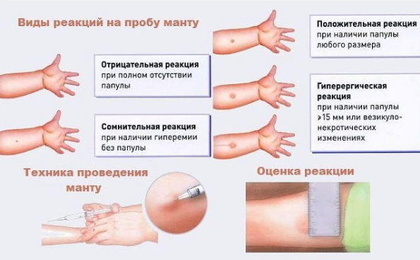 Диаскинтест — что это такое | ktonanovenkogo.ru