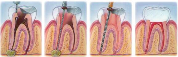 Гранулема зуба – причины и симптомы патологии