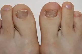 Как применять ногтимицин 911 от грибка ногтей