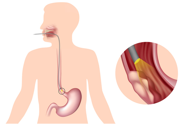 Основные симптомы и болезни пищевода