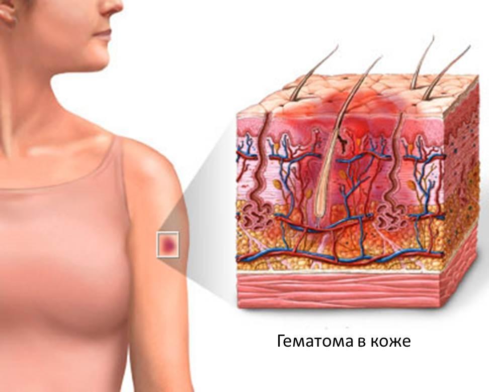 Определение давности повреждения мягких тканей