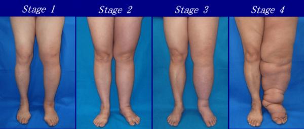 Лимфостаз нижних конечностей: причины, стадии и симптомы, медикаментозное лечение и операции