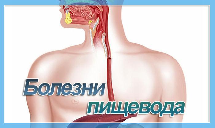 Рак пищевода. симптомы и признаки, стадии, лечение и прогноз при заболевании. :: polismed.com