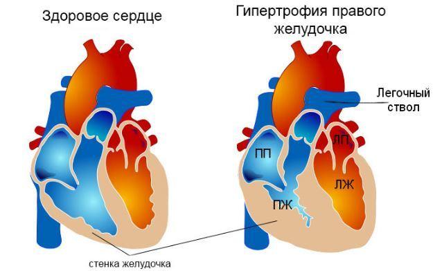 Гипертрофия левого желудочка сердца: экг, признаки, лечение | здрав-лаб