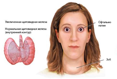 Субклинический гипотиреоз. что это такое, симптомы, лечение у женщин, детей, мужчин