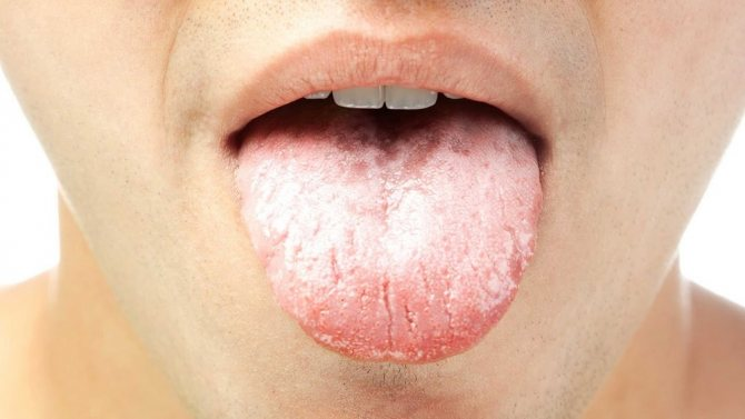 Глоссит: формы, симптомы и лечение народными средствами