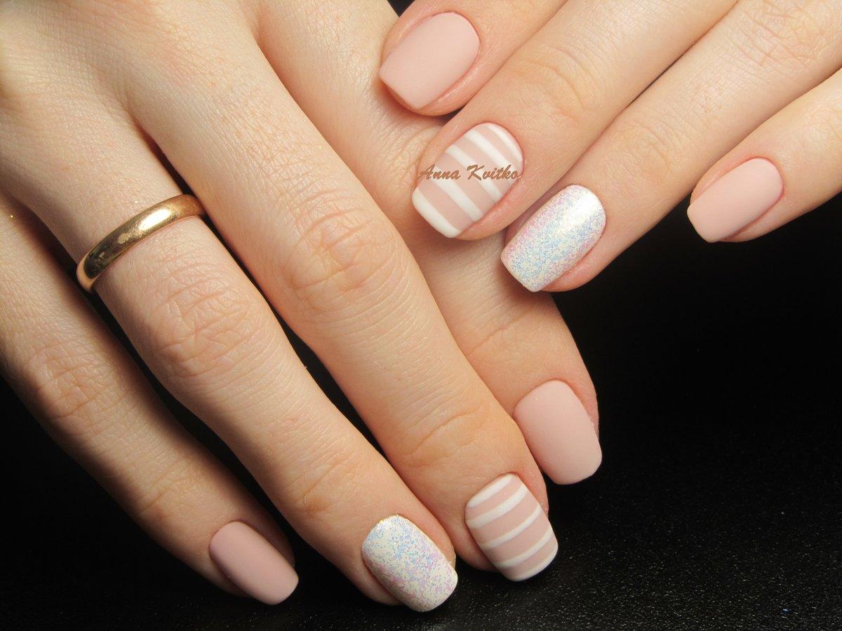 Вертикальные полосы на ногтях рук и ног. причины, лечение, чего не хватает в организме