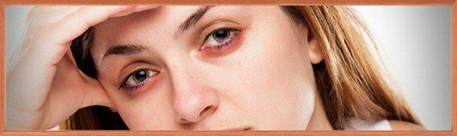 От чего желтеет кожа на теле. причины пожелтения кожи и разновидности желтухи