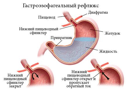 Гастроэзофагеальная рефлюксная болезнь (гэрб): причины, симптомы, лечение