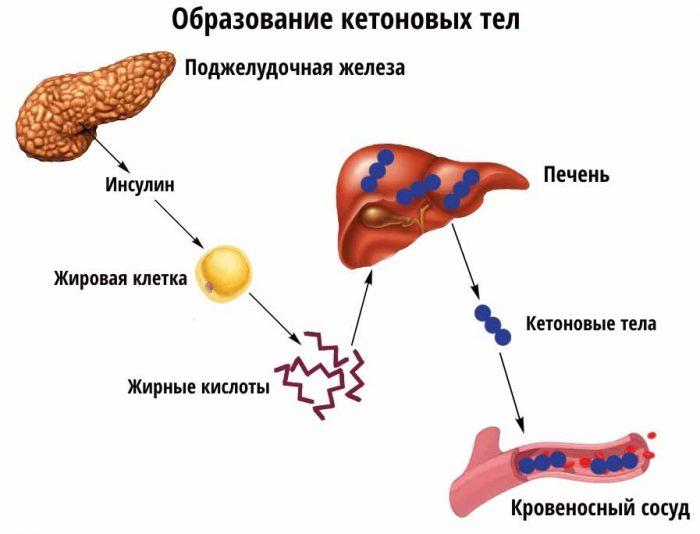 Кетоновые тела в моче у ребенка: повышенные, норма в анализе