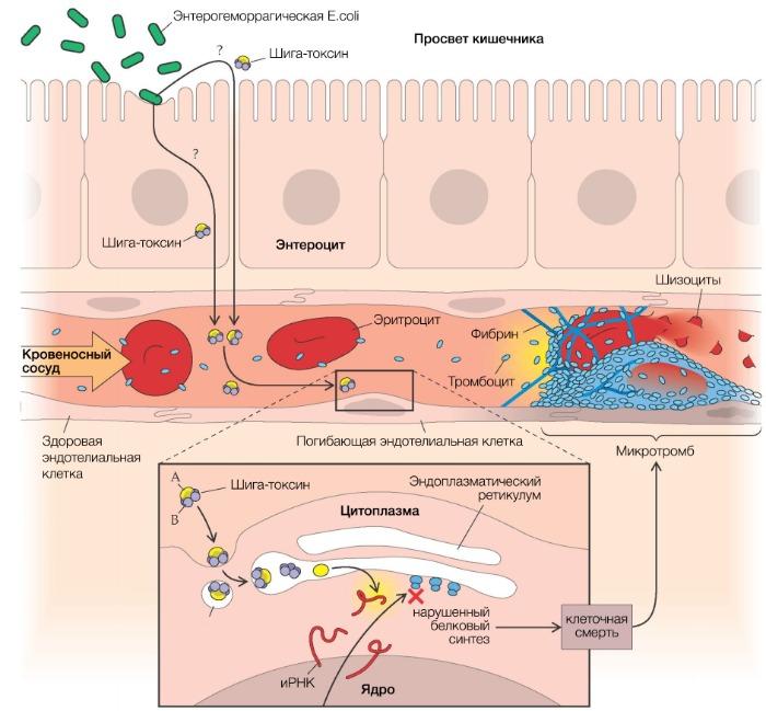 Гемолитико-уремический синдром: гемолитико-уремический синдром