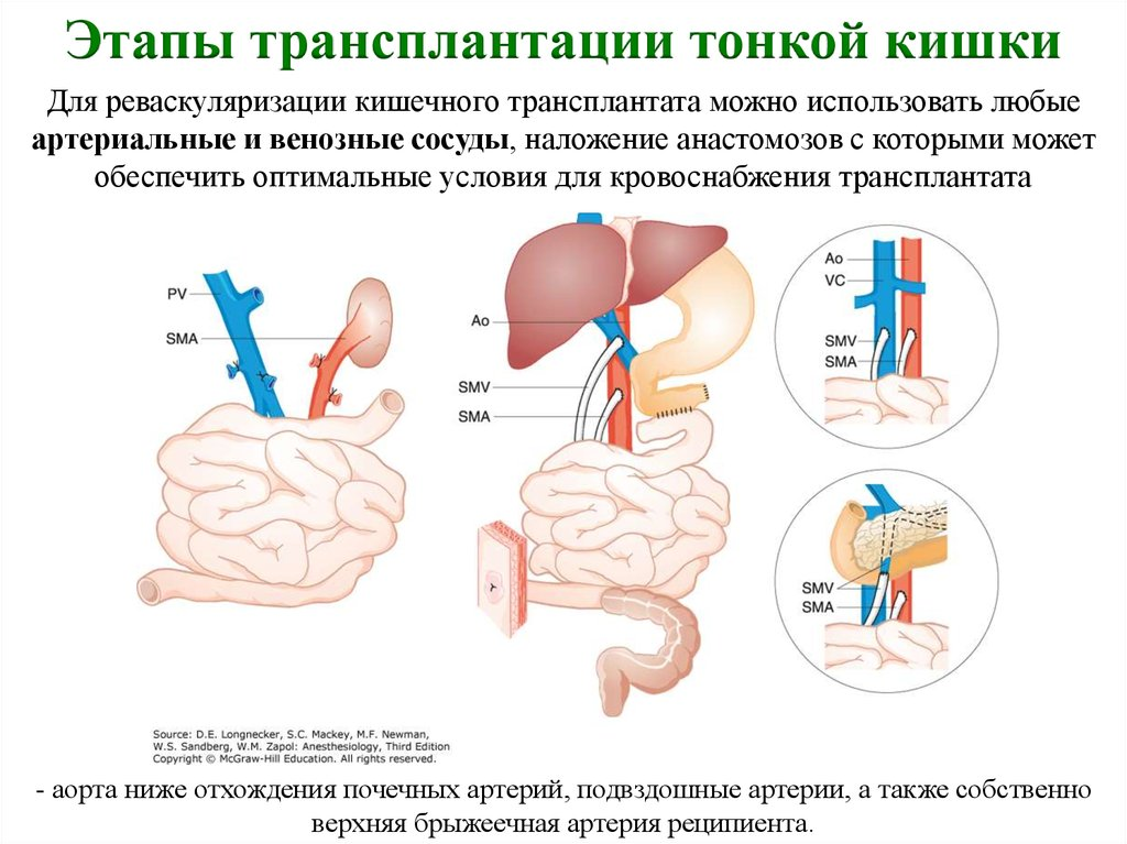 Резекция кишечника, операция по удалению кишки: показания, ход, реабилитация
