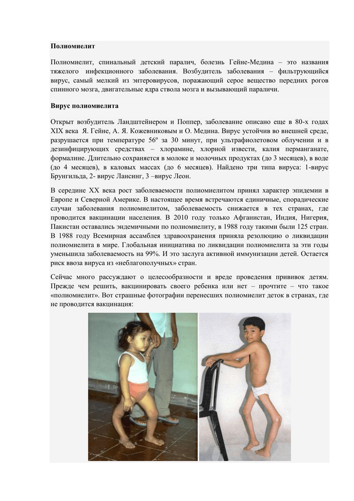 Не все прививки от полиомиелита и детский сад