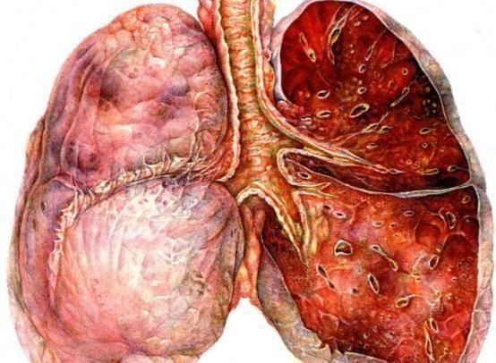 Тесты про пневмонию