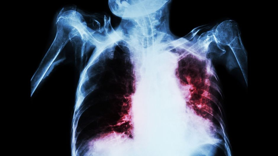 Влияние туберкулеза на беременность и роды
