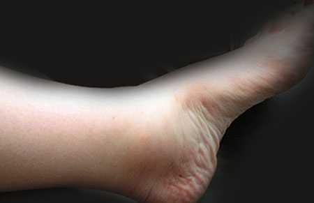 Снятие усталости ног