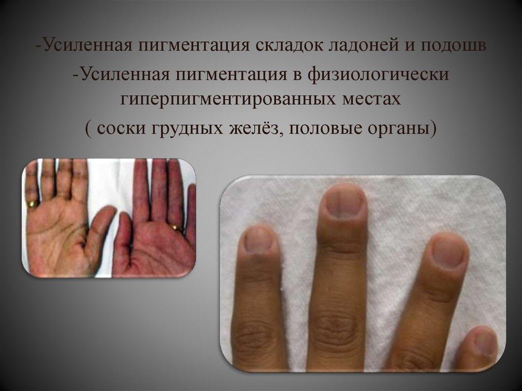 Болезнь аддисона симптомы у женщин. бронзовая болезнь, причины, симптомы, лечение