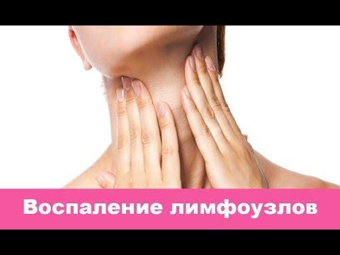 Подчелюстной лимфаденит: причины, симптомы и лечение