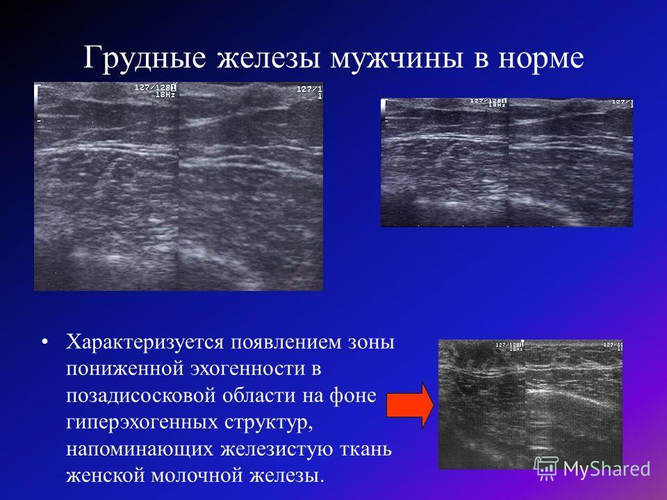 Строение женской молочной железы. анатомия человека