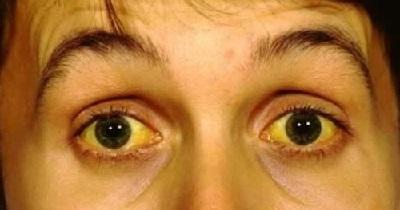 Синдром жильбера – что это? симптомы болезни и методы лечения