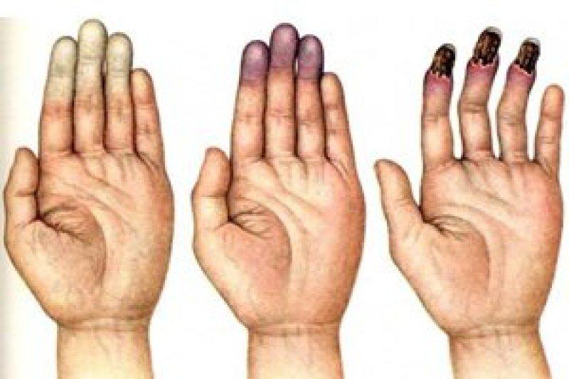 Болезнь рейно (финомен рейно, синдром рейно)